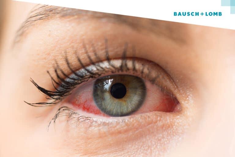 Alergie oczu, soczewki dla alergika