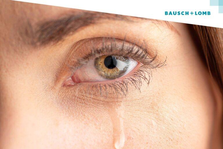 Dlaczego oczy łzawią?